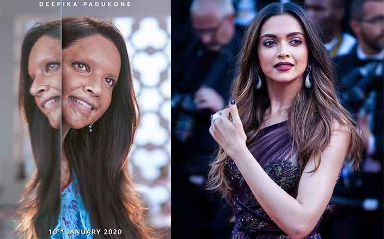 Deepika Padukone as acid attack survivor in 'Chhapaak